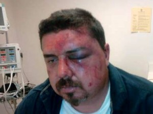 Chiclana says he sustained these injuries after an altercation with deputies in 2011.