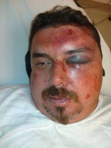 Chiclana says he sustained these injuries after an altercation with deputies in front of AV Hospital.